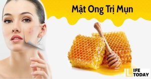 tẩy trang bằng mật ong rất tốt với da mụn